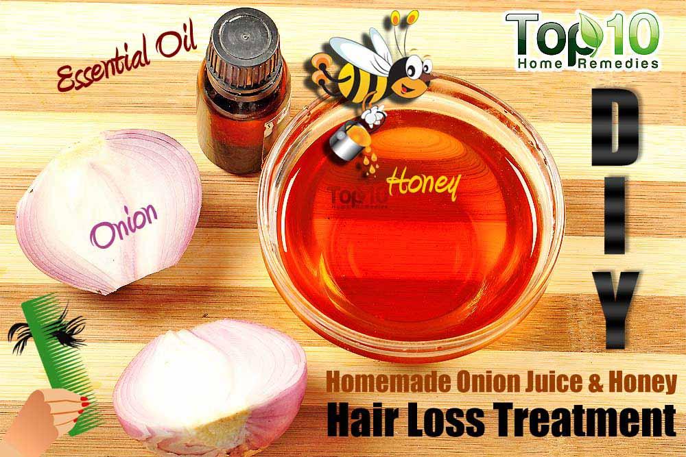 Homemade Remedy To Reduce Hair Loss Using Onion Juice