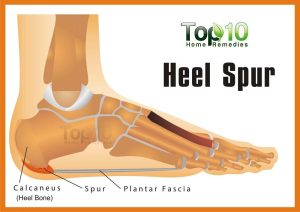 Home Remedies for Heel Spurs | Top 10 Home Remedies
