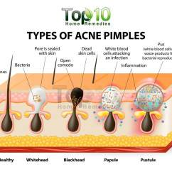 What Causes Acne Diagram 2006 Chevy Silverado Stereo Wiring Home Remedies For Pimples | Top 10