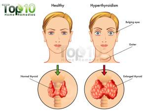 Home Remedies for Hyperthyroidism | Top 10 Home Remedies