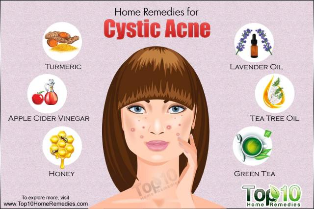 Image result for How To Treat Severe Acne