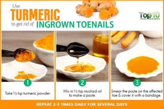 turmeric to treat ingrown toenails