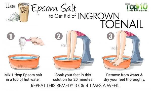 epsom salt for ingrown toenails