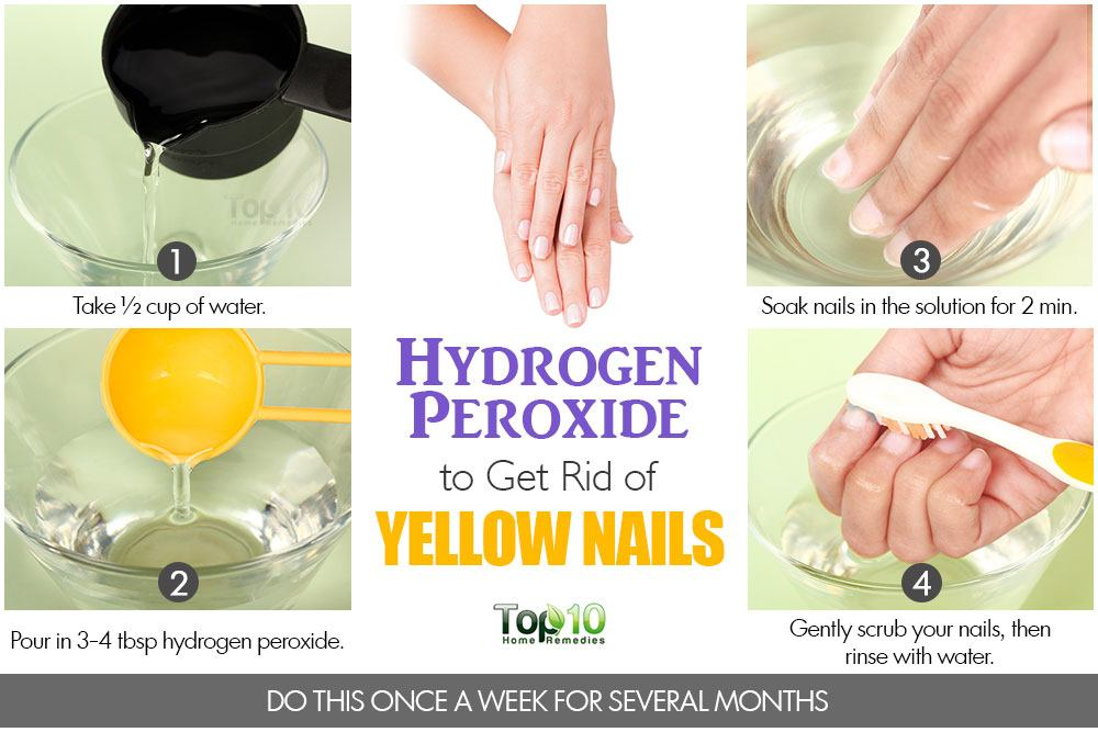 Hydrogen Peroxide To Get Tid Of Yellow Nails