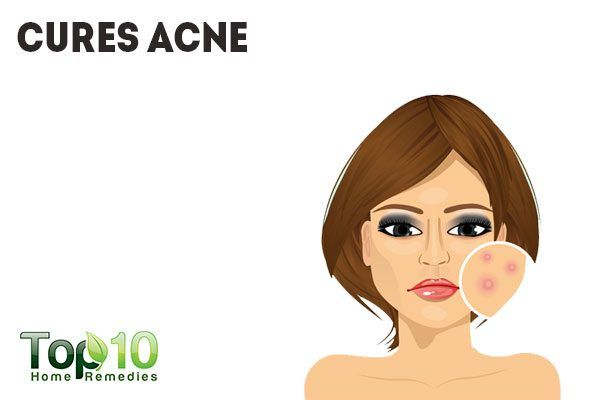 banana peel cures acne