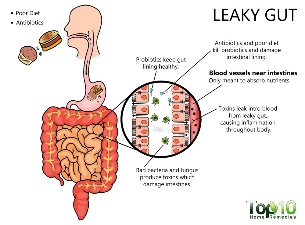 Risk Factors for Leaky Gut Syndrome You Should Know | Top 10 Home Remedies