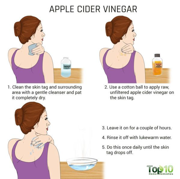 apple cider vinegar to get rid of neck skin tag