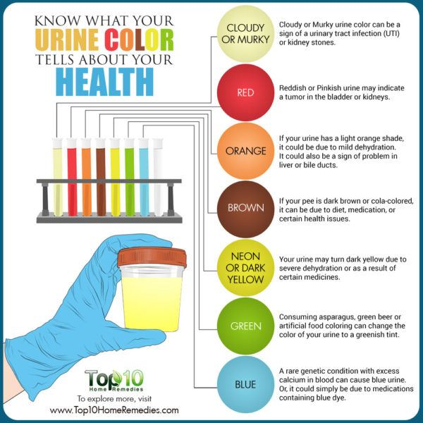 what your urine color tells about your health
