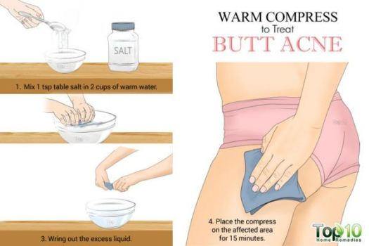 warm compress for butt acne