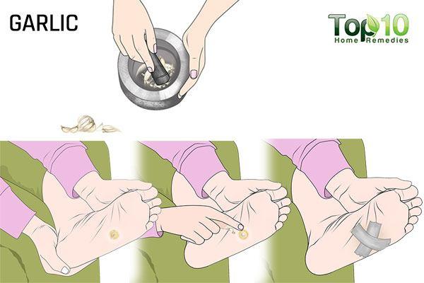 garlic for plantar warts