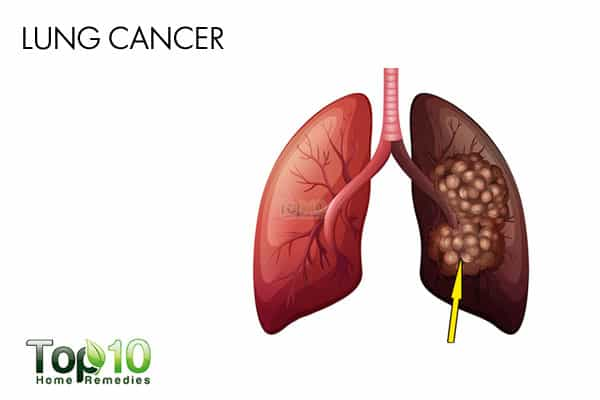lung cancer from secondhand smoke