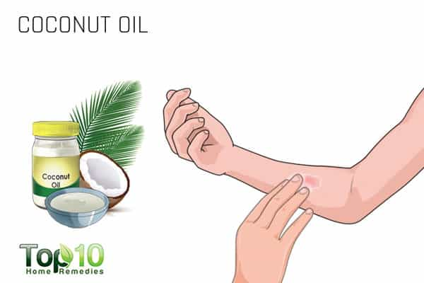 coconut oil for ringworm of the body