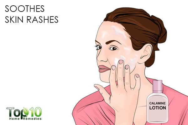 calamine lotion soothes skin rashes