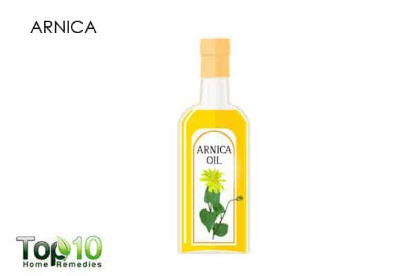 arnica for sprained thumb