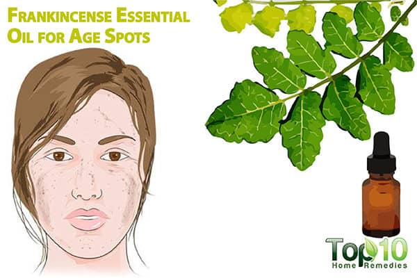 frankincense oil for age spots
