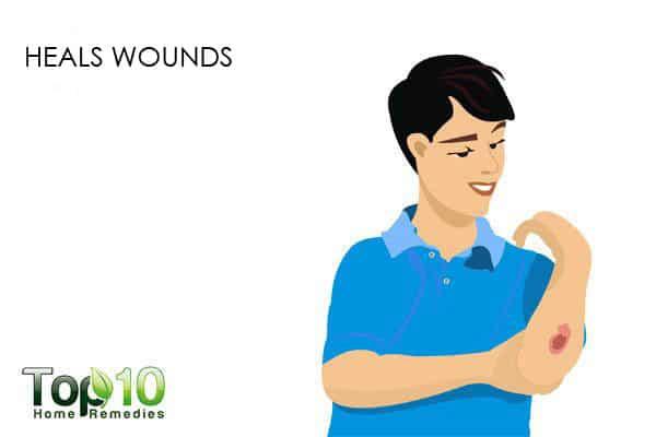 eucalyptus oil heals wounds