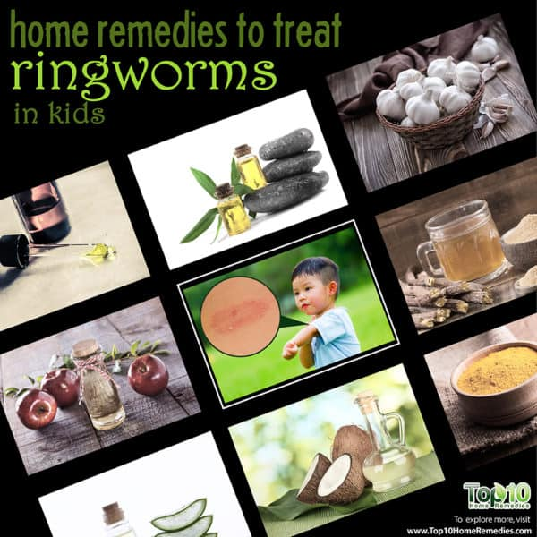 home remedies to treat ringworm in kids