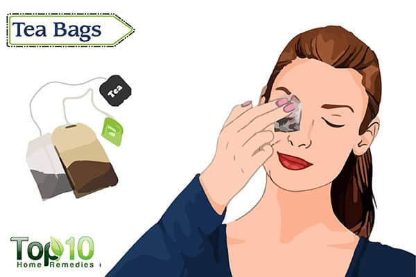 treat red eyes with tea bags