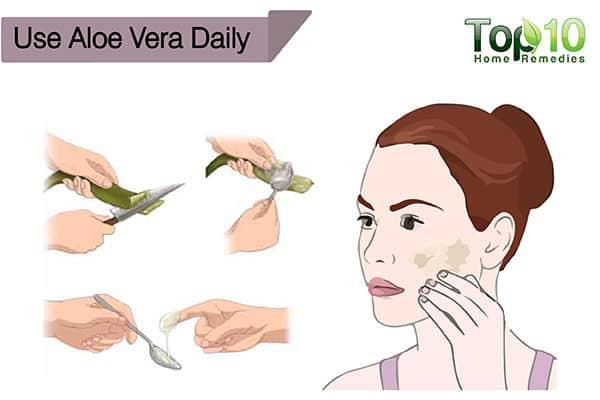 use aloe vera to treat sunntan
