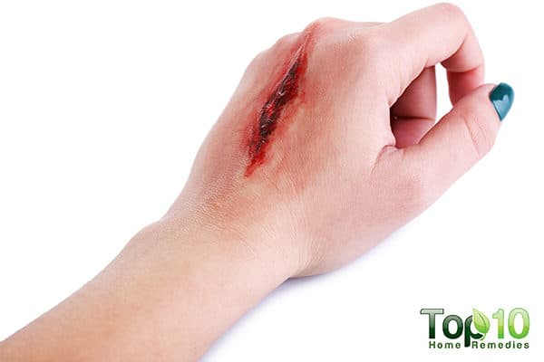wound care tips for diabetes people