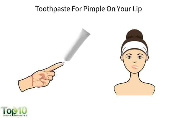 toothpaste for pimple on your lip