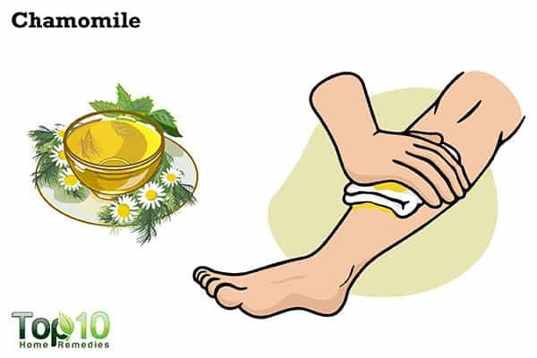 chamomile to heal jellyfish sting