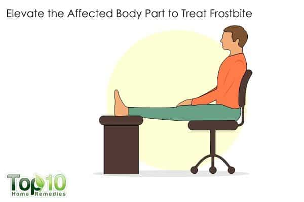 elevate affected body part to reduce frostbite