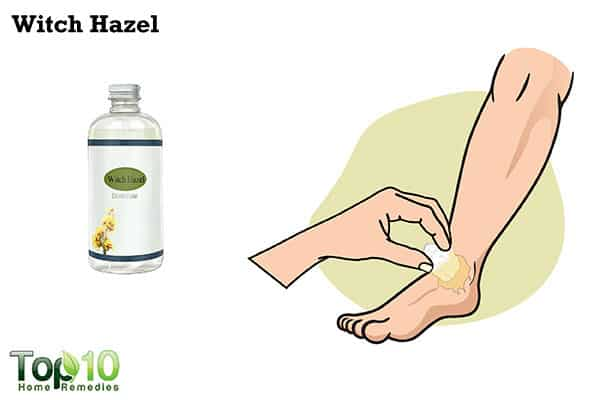 witch hazel to ease jellyfish sting