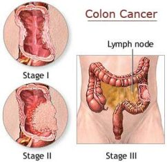https://i0.wp.com/www.topnews.in/health/files/colon-cancer.jpg?resize=242%2C236