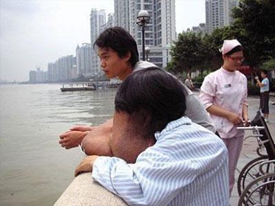 31-летний Хуанг Чункай с рождения страдает нейрофиброматозом - обезображивающим заболеванием, вызванным разрастанием оболочек периферических нервов.