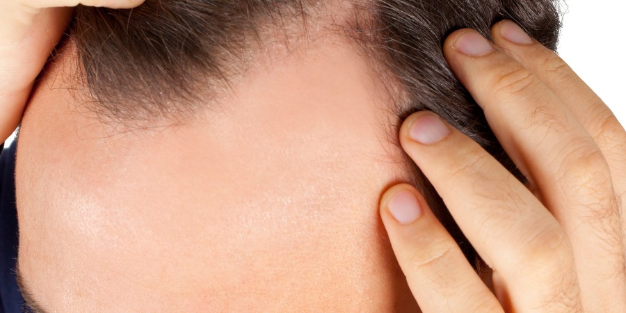 Hair Toppiks Hair Regrowth For Men And Hair Loss Options