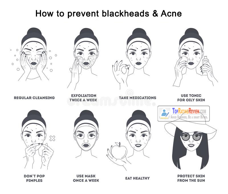 How to prevent blackheads and Acne