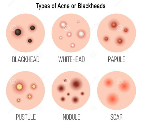 Types of Acne or Blackheads