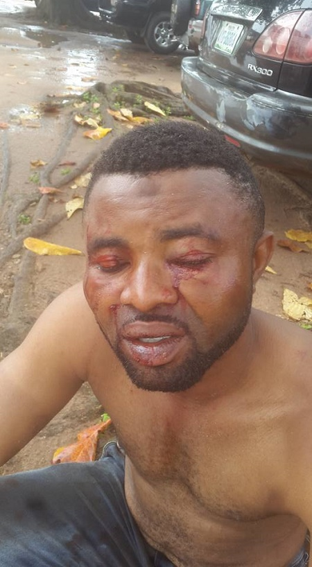 Thug Beat 1 - Thugs Beat Two Brothers To A Pulp Over Market Fee In Edo State (Photos)