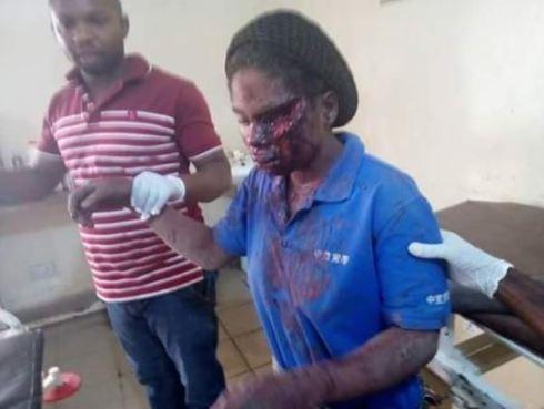 Image result for fulani herdsmen attack