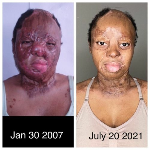 Okwuchi shares before and after photos