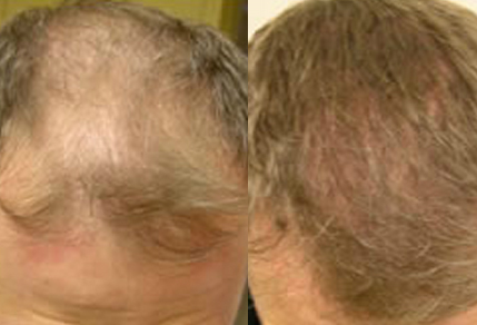 Before And After 40 year old male 2000 grafts - Toronto ...