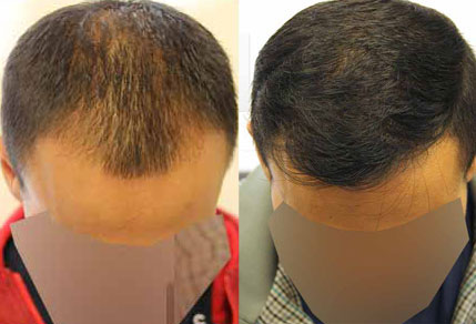 Before And After Graft FUE Procedure 30 Year Old Male ...