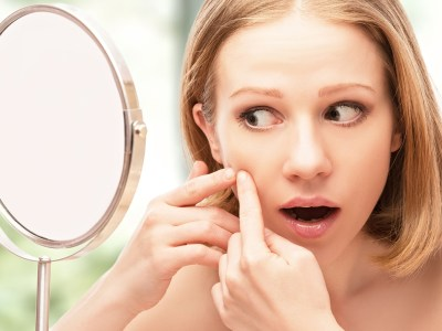 A woman in need of acne scar revision in Toronto