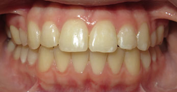Braces Before And Afters | Orthodontic Treatment Results ...