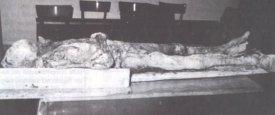 La mummia di Torricella