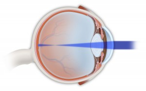 What is astigmatism?