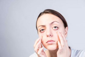 Itchy Eyelids Common Causes and Treatments