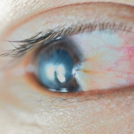 What is a Pterygium?