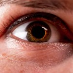 white spot on eyelid concept art closeup of human eye