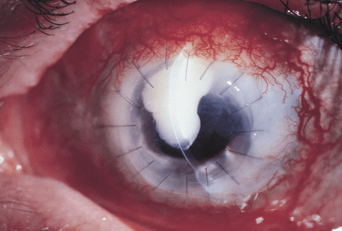 Patient with Exogenous Endophthalmitis