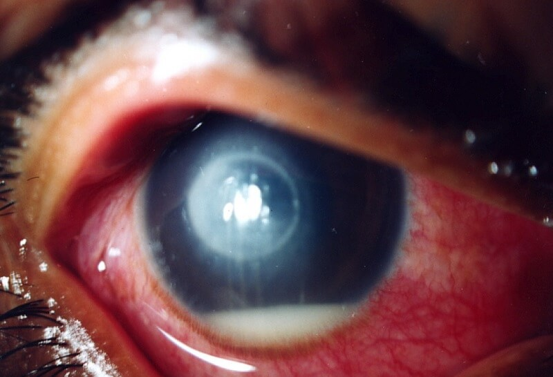 eye of a person with fungal keratitis