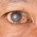 Corneal Scars and Treatment Options