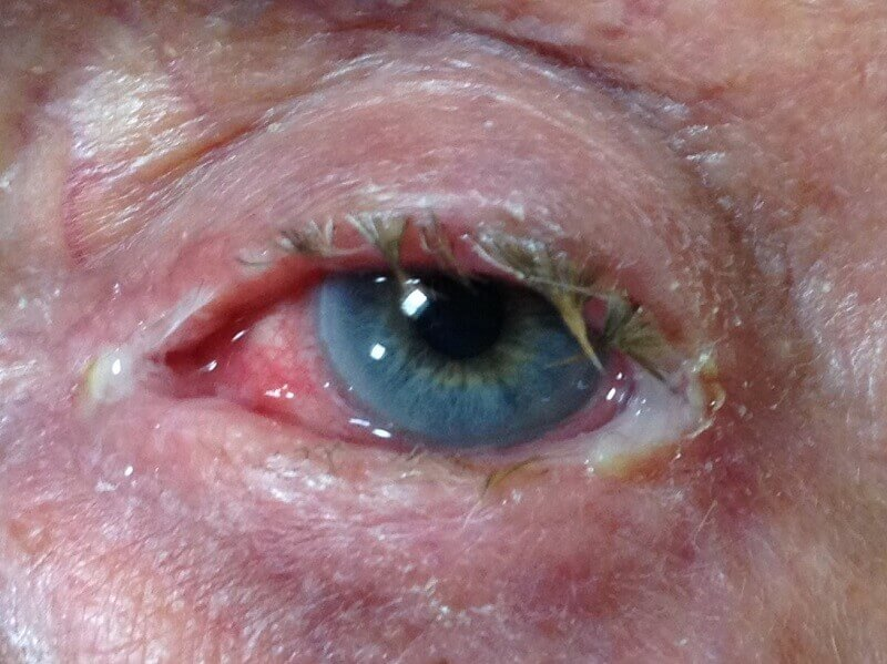 Acute bacterial conjunctivitis in the left eye, a common bacterial eye infection