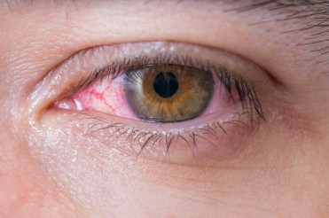 Macro of conjunctivitis red eye.